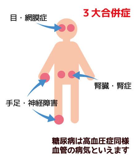 3大合併症