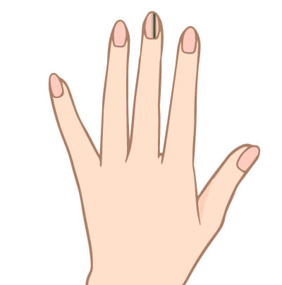 黒い線の爪
