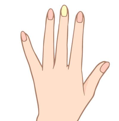 黄色く濁った爪